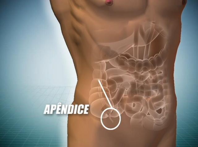 sintomas da apendicite