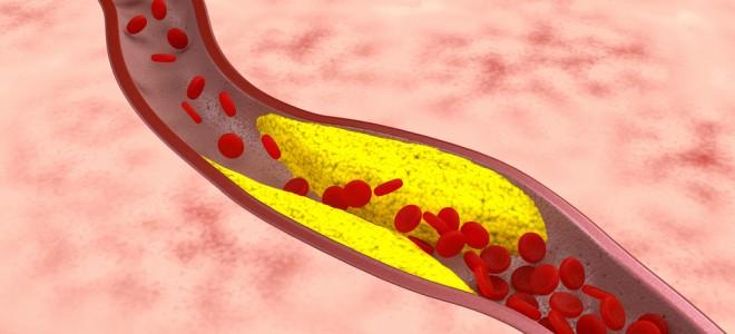 A aterosclerose é responsável pelo estreitamento e enrijecimento das artérias. Foto: Shutterstock