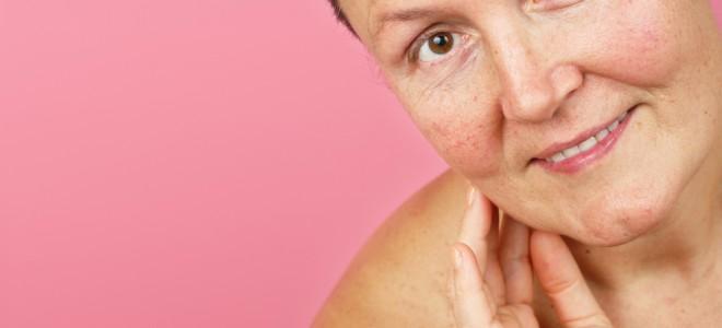 Diminuição do colágeno favorece o envelhecimento da pele durante a menopausa. Foto: Shutterstock