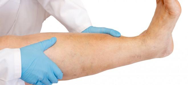 Se não tratada, a trombose pode provocar complicações a curto ou longo prazo. Foto: Shutterstock
