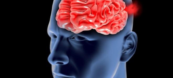 Estima-se que cerca de 5% da população têm algum tipo de aneurisma cerebral. Foto: Shutterstock