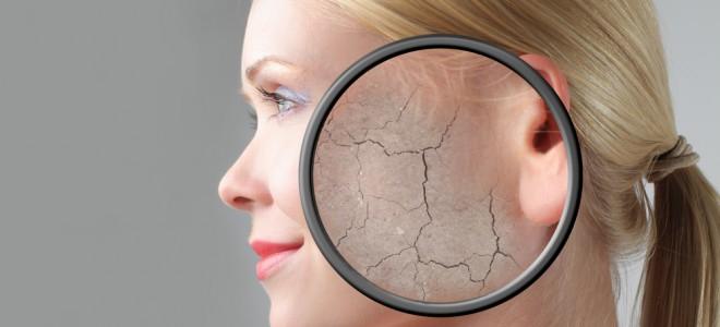 Na maioria dos casos, causas da pele seca se referem à agressão contínua à pele. Foto: Shutterstock