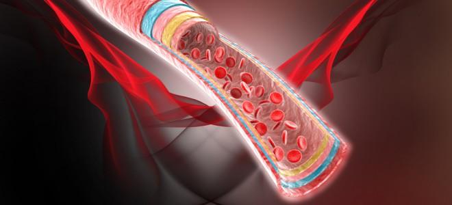 Doença ocorre mais na perna ou no braço, de forma superficial ou profunda. Foto: Shutterstock