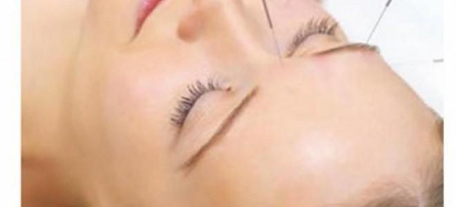 acupuntura energética
