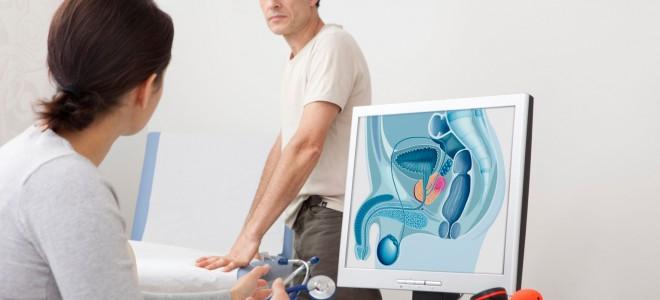 câncer na próstata
