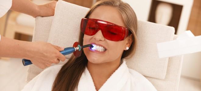 Clareamento dental tem seus prós e contras: discuta o assunto com seu dentista. Foto: Shutterstock