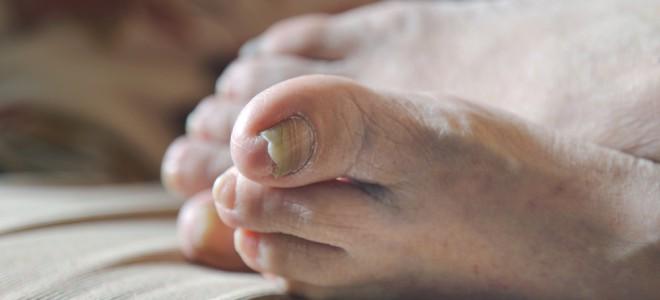 rachaduras nos pés