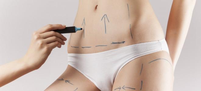 Cuidados pré-operatórios são vitais para minimizar riscos da abdominoplastia. Foto: Shutterstock