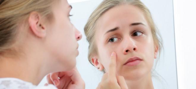 Confira Dicas Para Voce Aprender A Cuidar Da Pele Seca E Com Acne