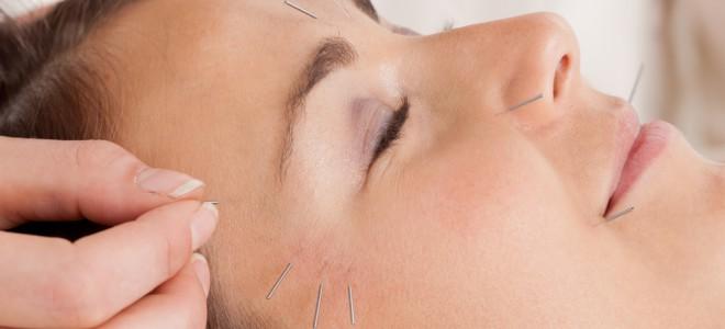 Acupuntura para rugas possibilita à mulher rejuvenescer em até 10 anos. Foto: Shutterstock