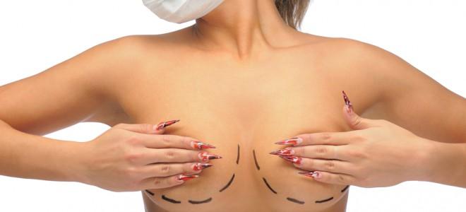 2995f1ca8 Redução de seios é solução a problemas gerados pelo tamanho exagerado das  mamas. Foto