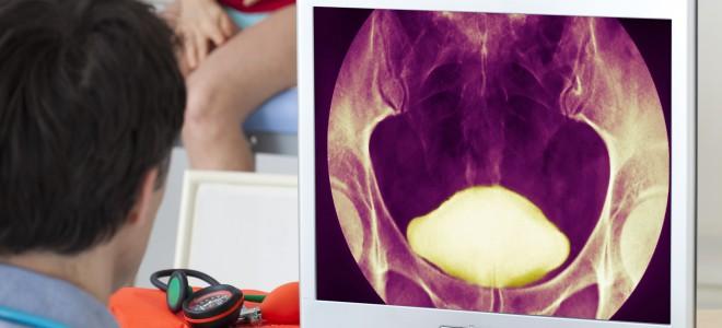 Atenção aos sintomas e recorrer a ajuda médica são formas de enfrentar o quadro. Foto: Shutterstock