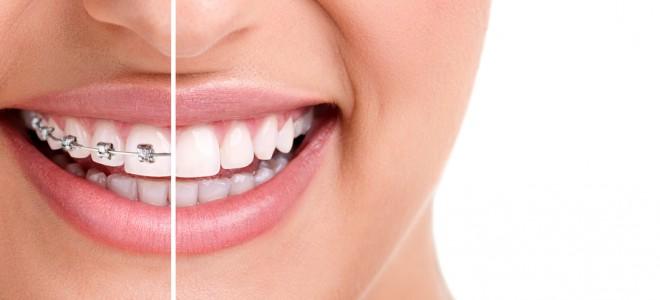 Uso do aparelho ortodôntico alinha os dentes e tem ainda muitas outras funções. Foto: Shutterstock