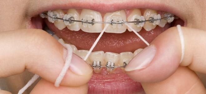 b0e8cdc73 Confira dicas para o uso do fio dental com aparelho ortodôntico ...