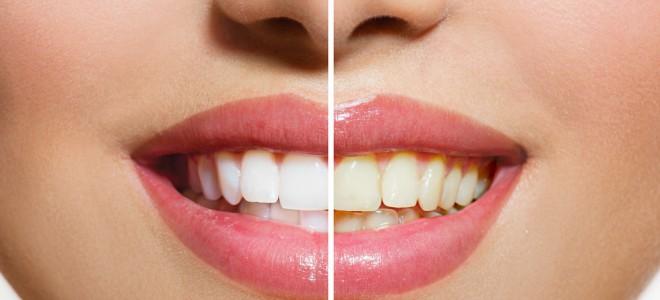Clareamento dental a laser deve ser realizado por profissional especializado. Foto: Shutterstock