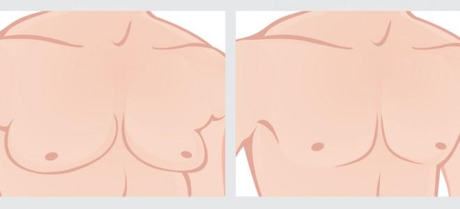 Ginecomastia promove a remoção da gordura do tecido mamário e também de pele. Foto: Shutterstock
