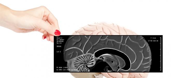 Ataque epilético muda de intensidade e característica conforma área do cérebro. Foto: Shutterstock