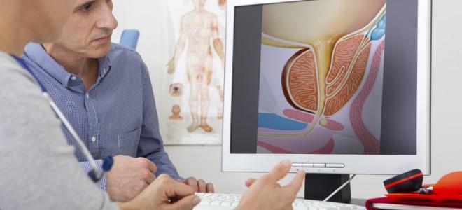 hiperplasia-da-próstata