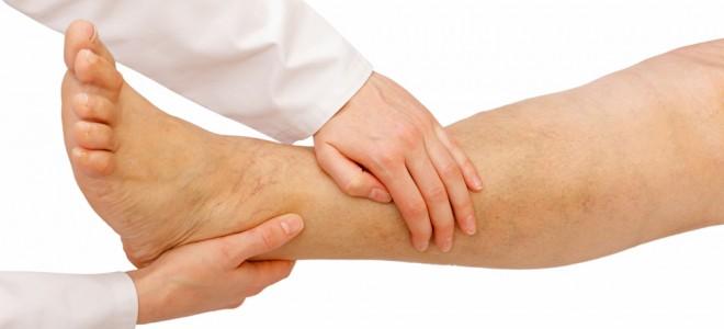 pernas-e-pés-inchados