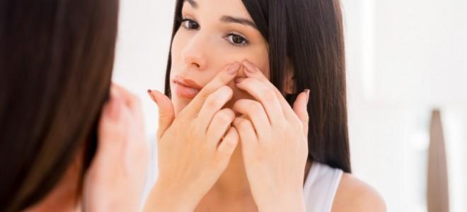 tratamento-para-acne