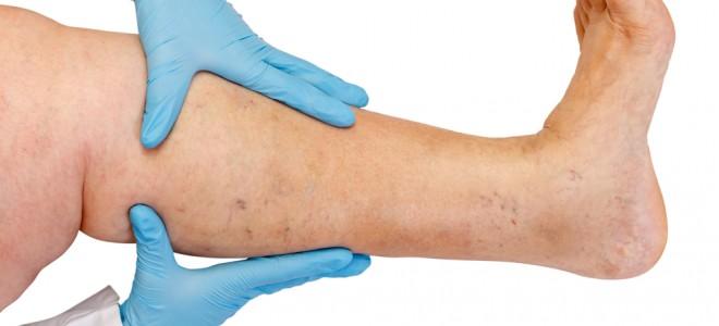 tratamento-para-varizes-grossas