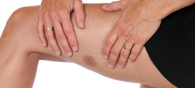 como-curar-hematomas