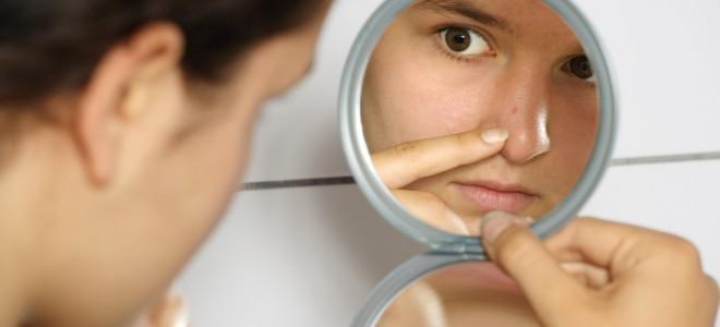 como-eliminar-as-manchas-de-acne