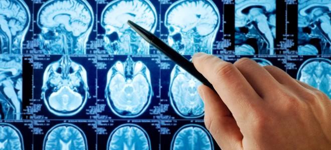 trombose-venosa-cerebral