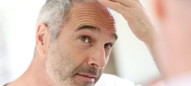 Alopecias cicatriciais