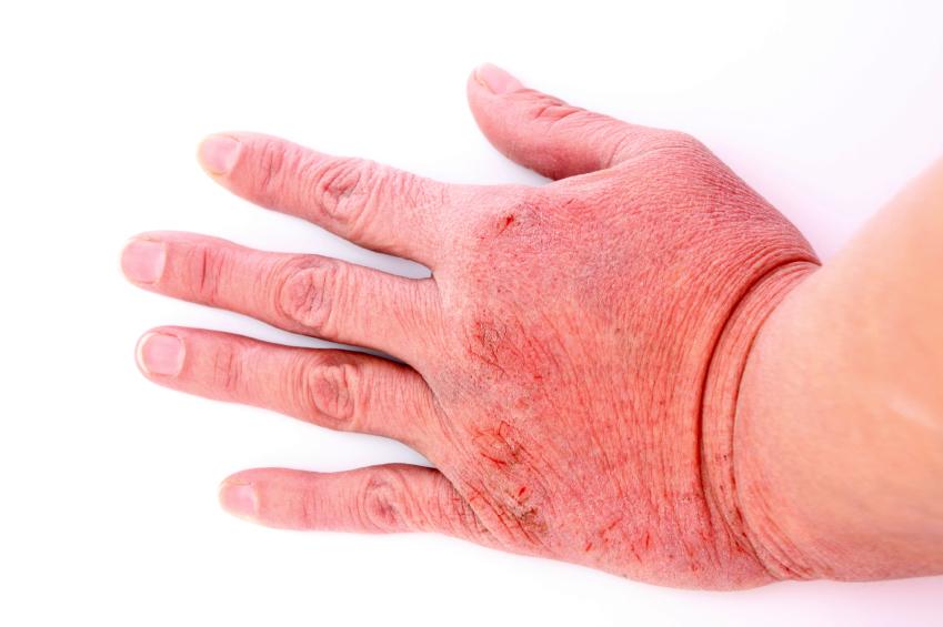 Como tratar a dermatite em casa