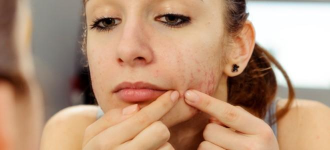 acabar-com-a-acne