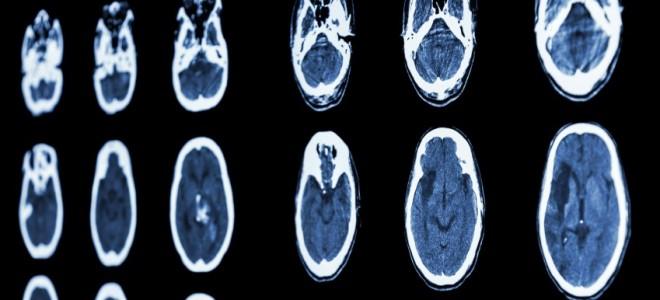 isquemia-cerebral