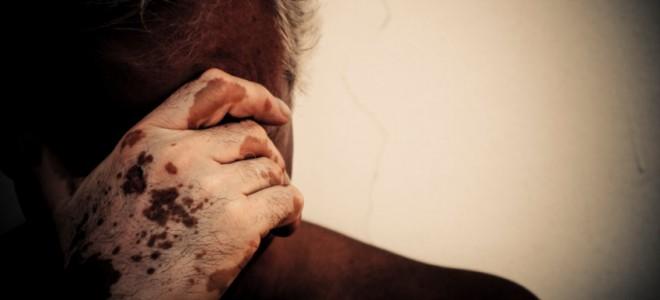 o-que-causa-vitiligo