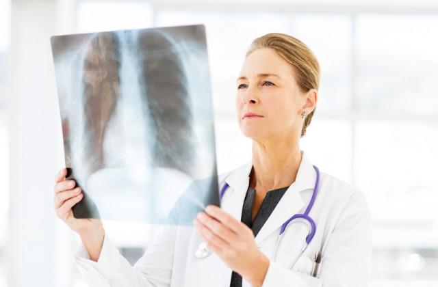 fibrose pulmonar