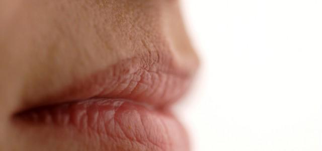 labios-rachados