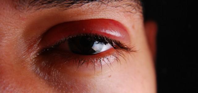 olho-inchado