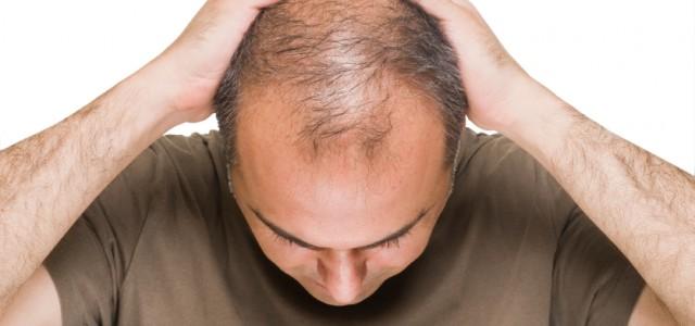 """Quando """"arrancar os cabelos"""" já não é só uma metáfora. Foto: iStock, Getty Images"""