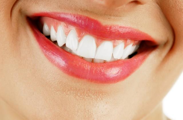 Aprenda Receita Caseira Para Clarear Os Dentes