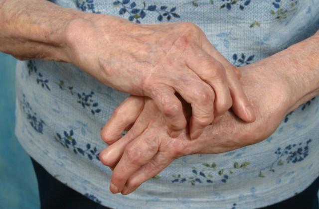 reumatismo nos ossos
