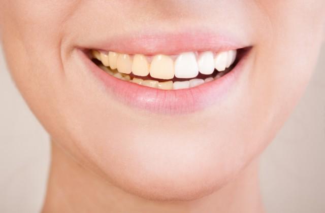 Como Acabar Com Os Dentes Amarelados Com 5 Dicas