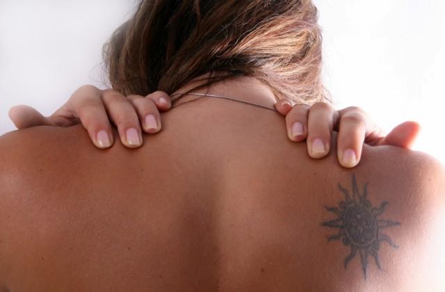 remover tatuagem