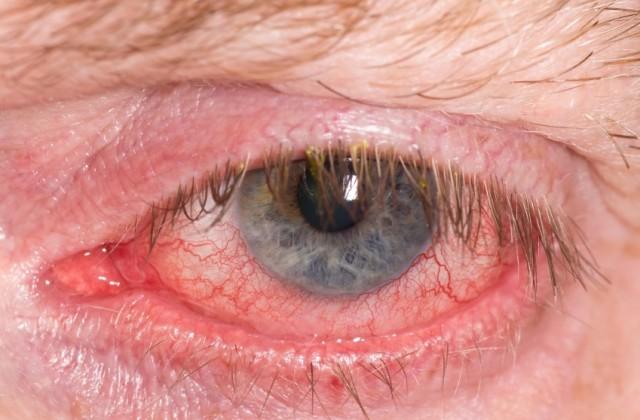 o que e glaucoma