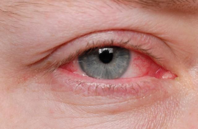doencas oculares
