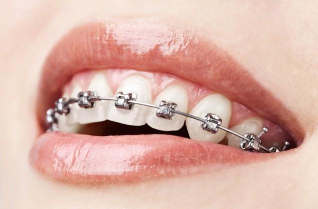 separador de dentes