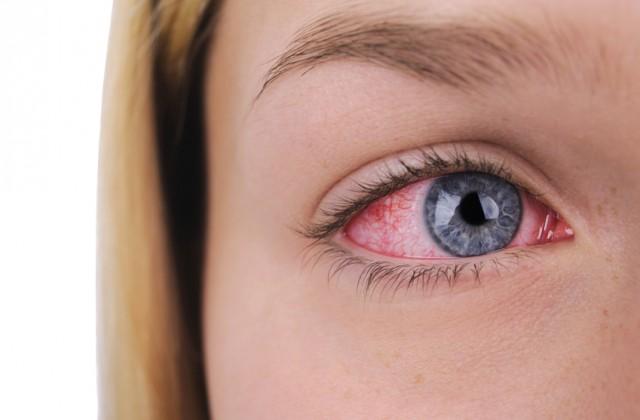 doencas dos olhos