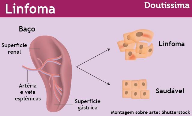linfoma