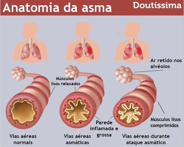 asma na gravidez
