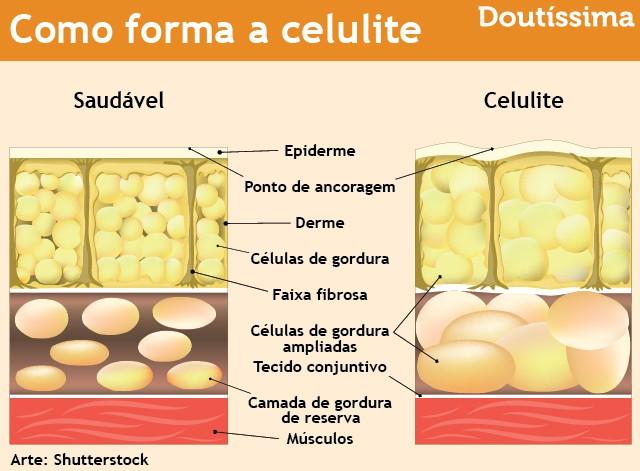 como combater a celulite