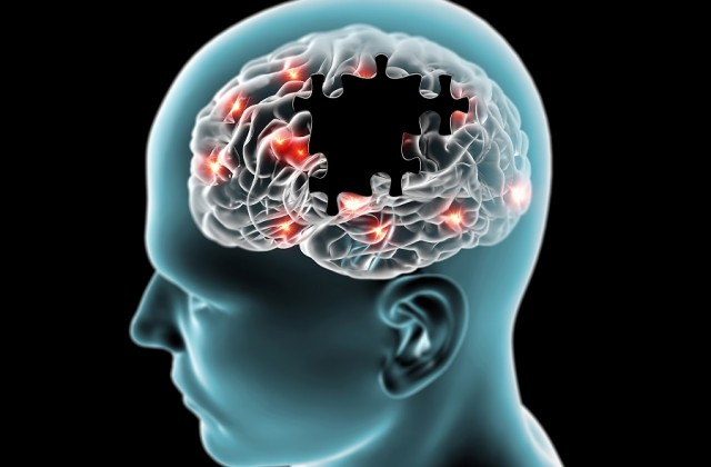 tratamento do alzheimer