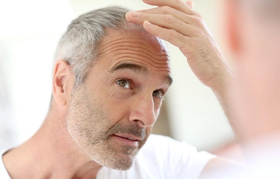 dermatite no couro cabeludo
